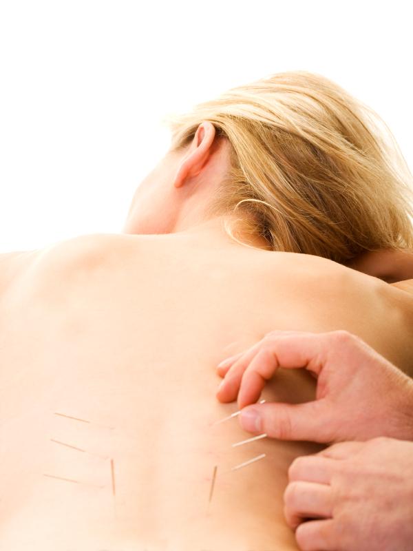 IStock_acupuncturebackSmall